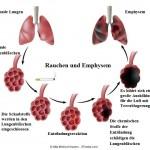Lungenemphysem,Phasen,Stadium,Alveole,Rauchen