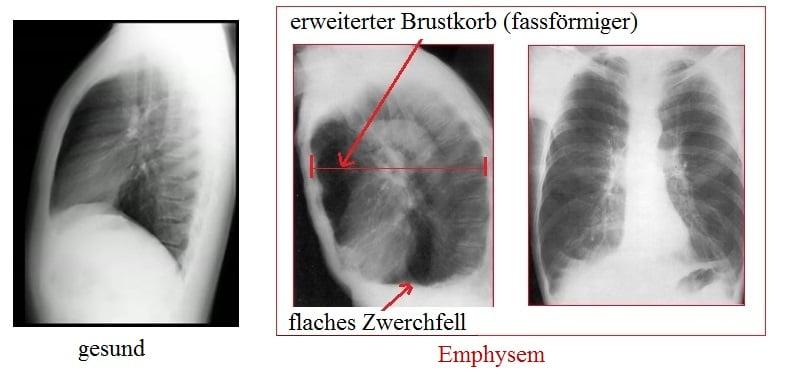 Emphysem,Lungen,Röntgenbild,flaches,Zwerchfell,erweiterter,Brustkorb