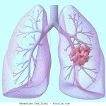 Lungenmetastase,pulmonal