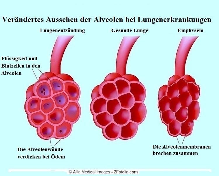 Lungenemphysem,Bronchien,Entzündung