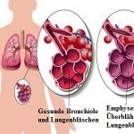 Emphysem,Lunge,Rauch,Alveolen