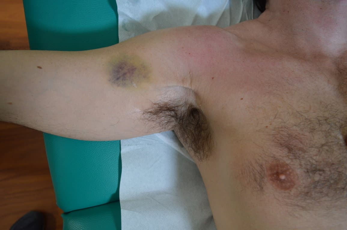 Schmerzen in der rechten Brust