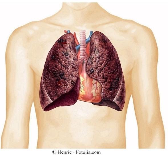 Tracheitis,Lungen,Husten