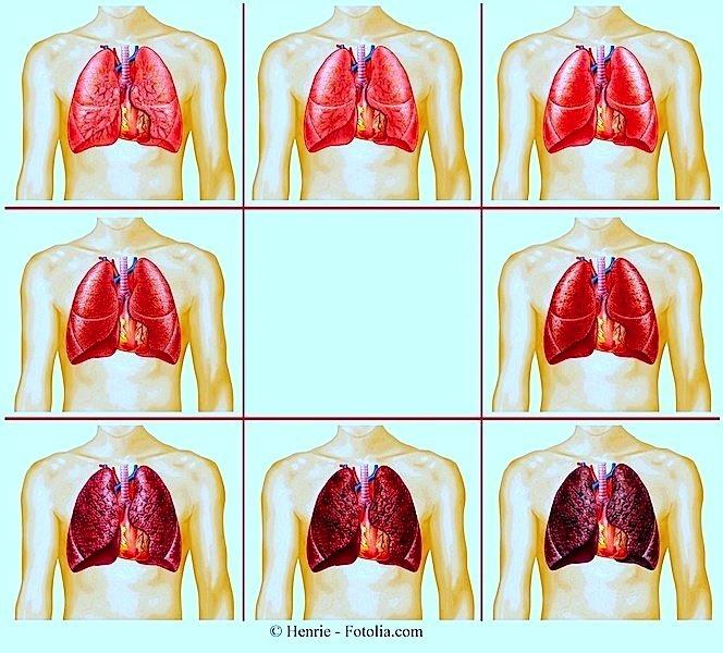 Aufhören zu Rauchen,Lungen,Schäden