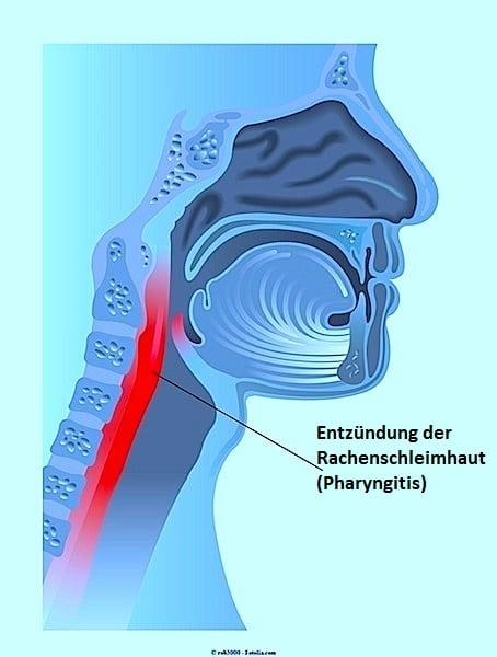 Pharyngitis,Entzündung,Rachen,Hals