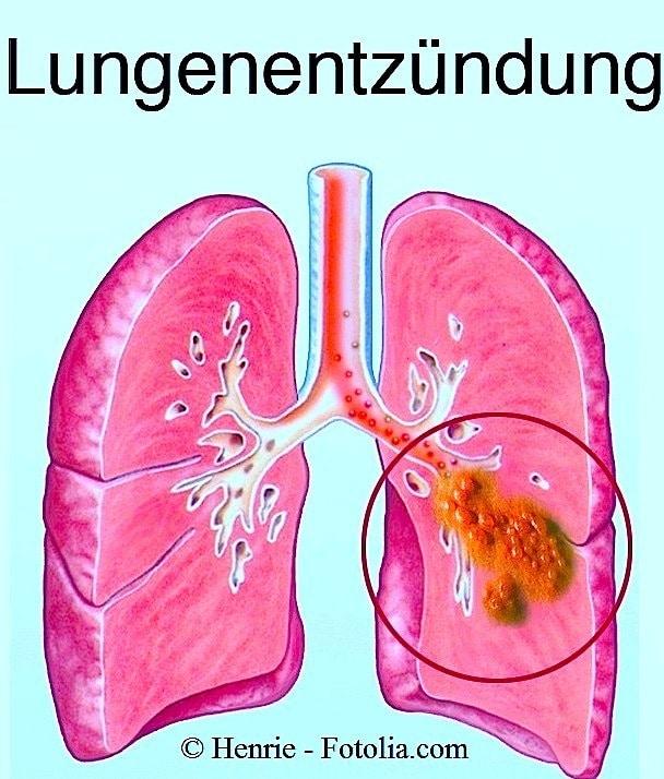 Lungenentzündung,Lunge,Infektion,Entzündung