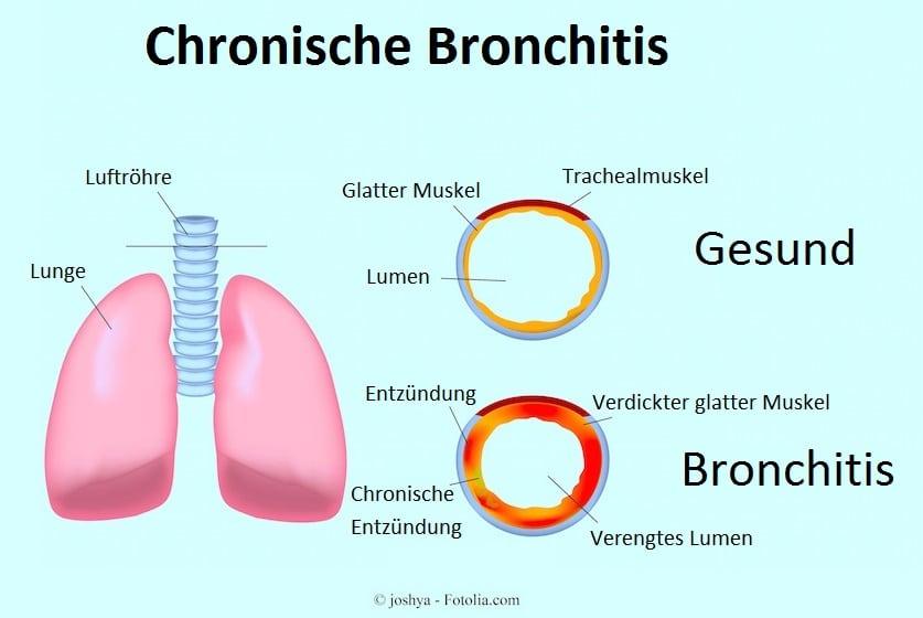 chronische Bronchitis,Entzündung,verengtes Lumen