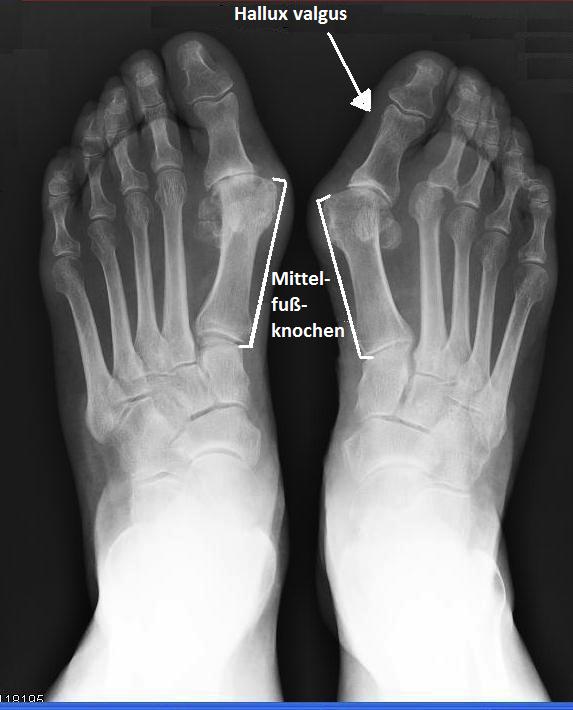 Hallux,valgus,Fuß,Röntgenaufnahme,Schmerzen,Absätze