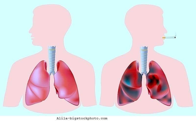 Lungenkrebs,Metastasen