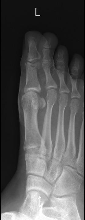 Fraktur Großzehe,Röntgenaufnahme,reponiert