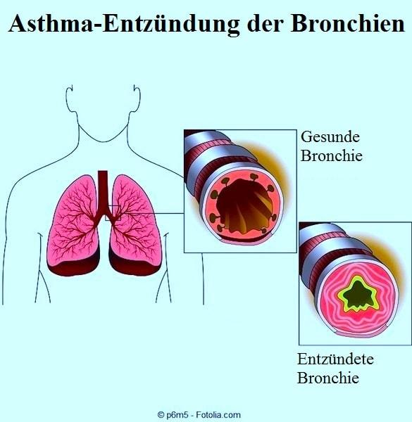 Husten,Bronchien,Bronchitis