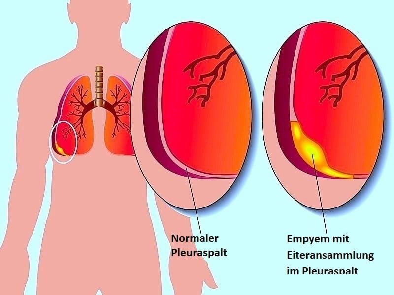 Pleuritis,Empyem