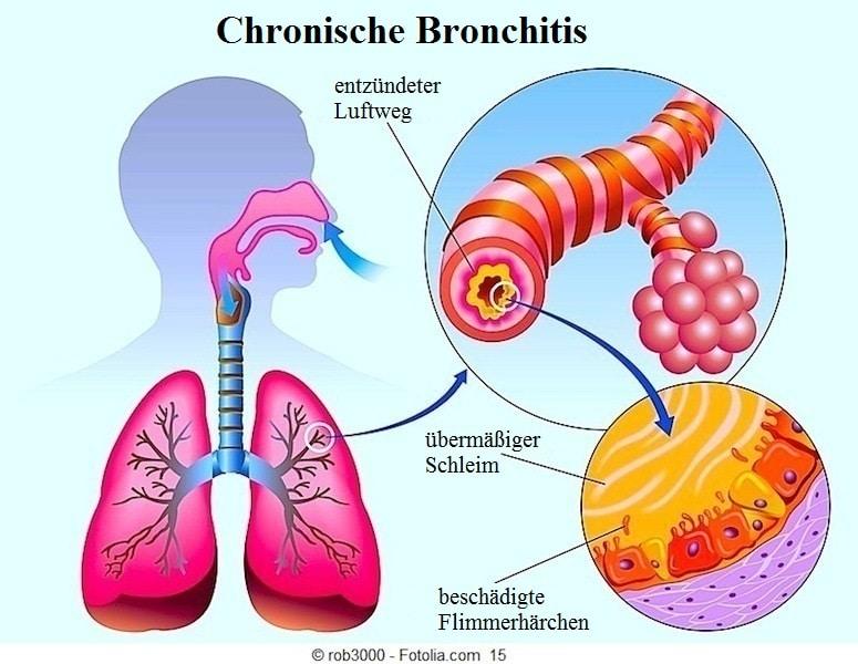 Bronchitis,Symptome,Bronchien