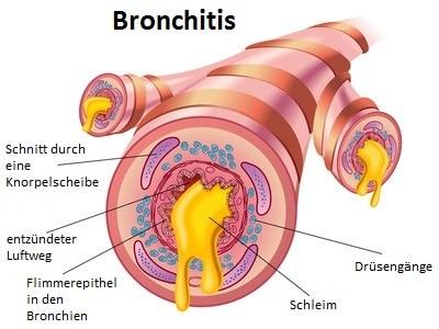 Chronische Bronchitis,obstruktiv
