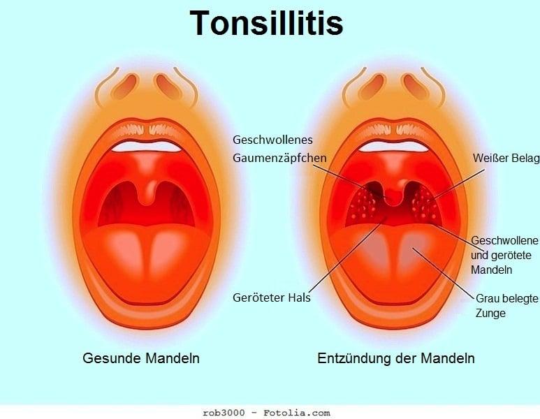 Mandelentzündung,Tonsillen,Schwellung,rot
