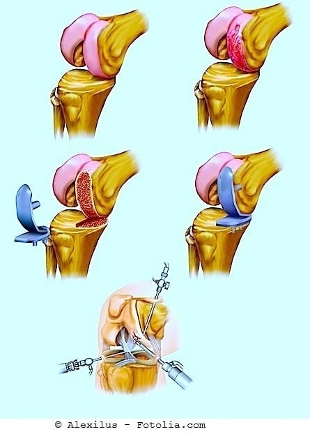 Knieprothese,Eingriff