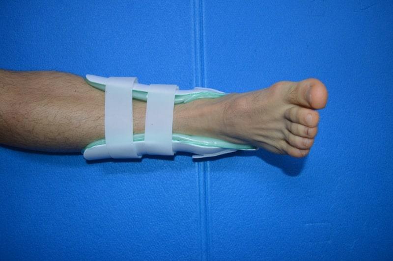 Sprunggelenkbandage,Schiene,Distorsion,Fraktur,Läsion,Schmerz,blockieren,begrenzen,Bewegung,Knöchel,Bein