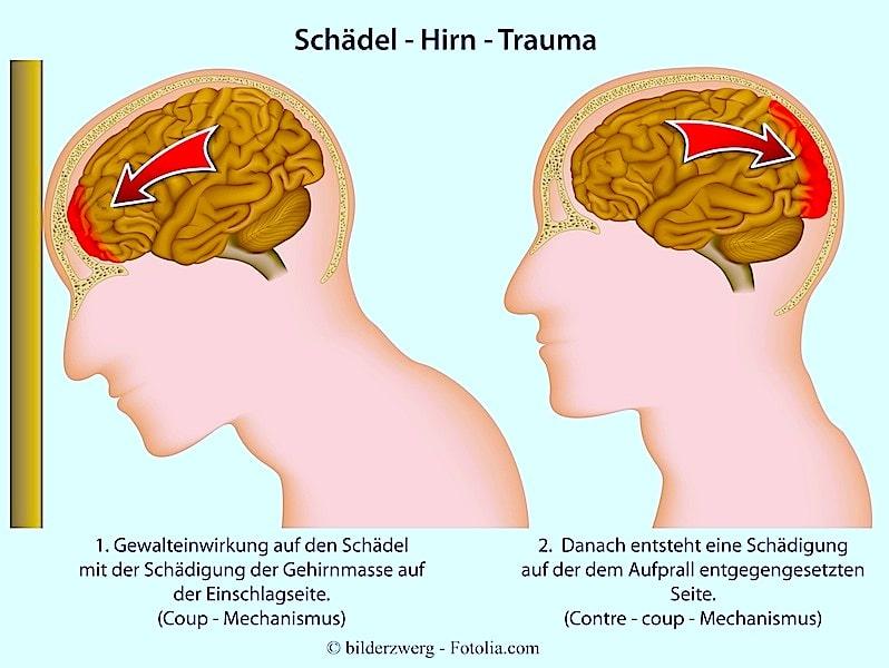 Schädelhirntrauma,Gehirnerschütterung,Auffahrunfall