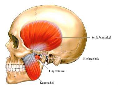 Kopfschmerz