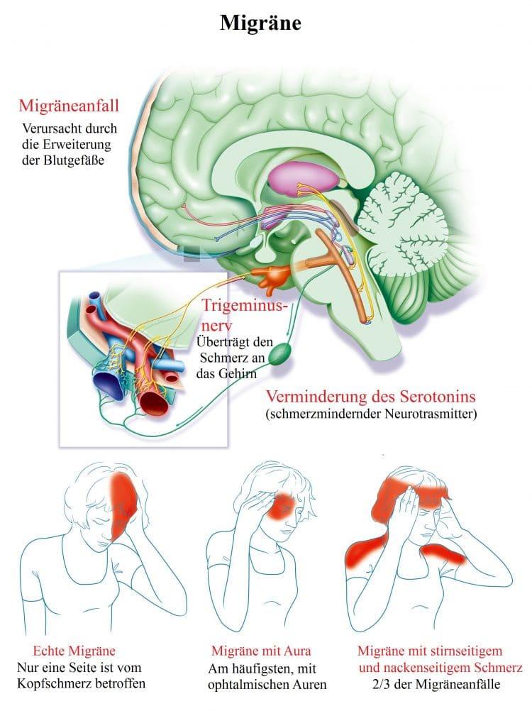Migräne-Aura-Trigeminus-Serotonin