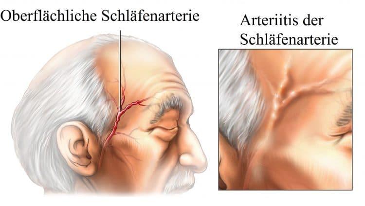 Oberflächliche-Schläfenarterie
