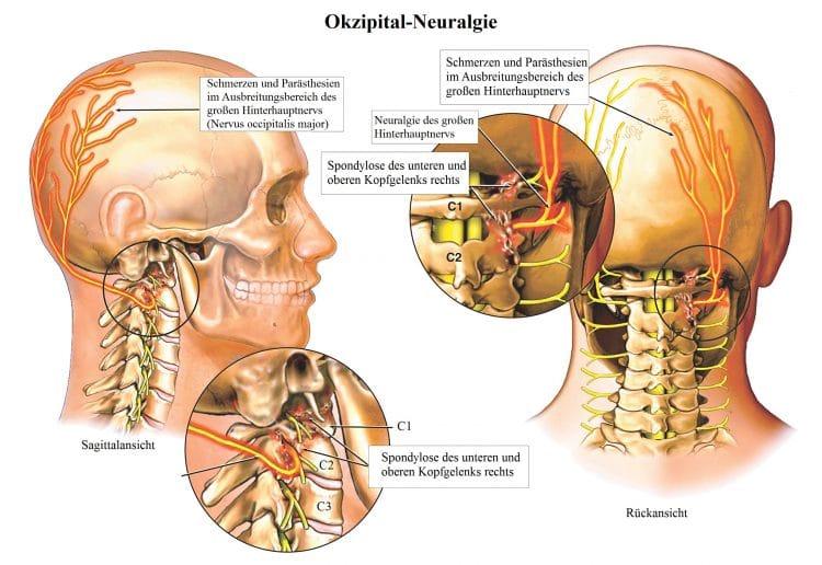 Okzipital-Neuralgie-Hinterhauptnerv-Parästhie