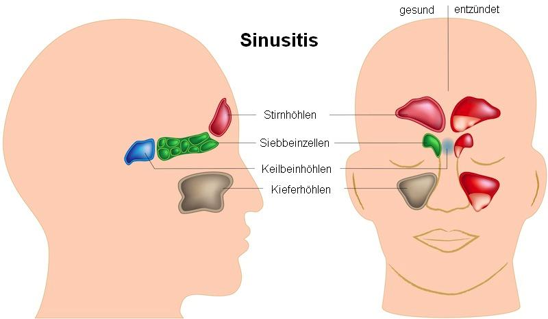 Sinusitis,Nebenhöhlen,frontal,Entzündung,paranasal,sphenoidal,ethmoidal,Schmerz,Kopf,Gesicht