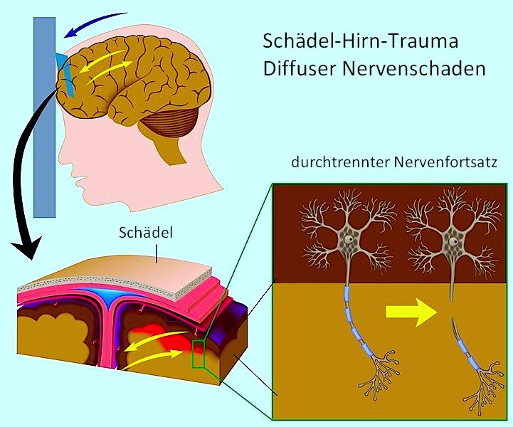 Schädelhirntrauma,subdural,Dura,Fraktur,Schädel,Axon,Schaden,axonal,Nerv,Gehirn