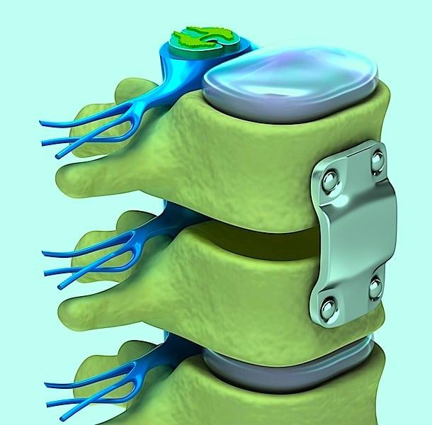 Fusion,vertebral,Instabilität,Eingriff,chirurgisch,Neurochirurg