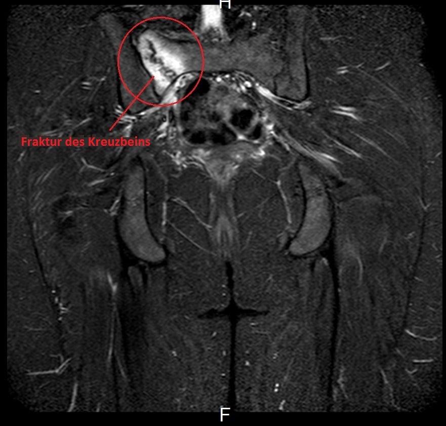 Fraktur,Kreuzbein,Magnetresonanztomographie