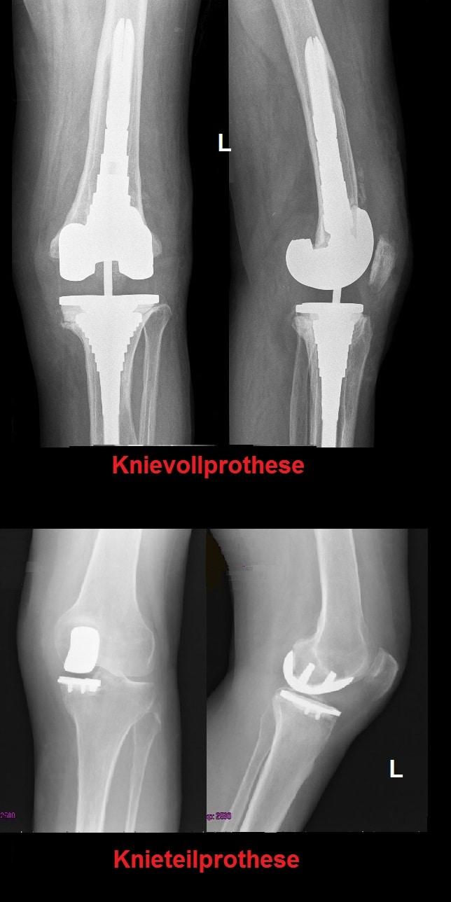 Kniegelenksprothese,unikompartimentell,total,Röntgenaufnahme