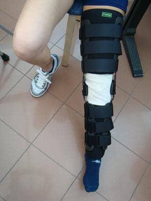 Orthese,nach,Operation,Eingriff,Kreuzbänder,Läsion,Ruptur,vorderes,lca