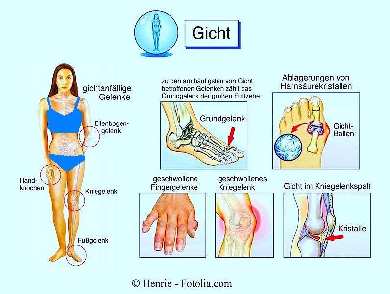 Symptome der Gicht