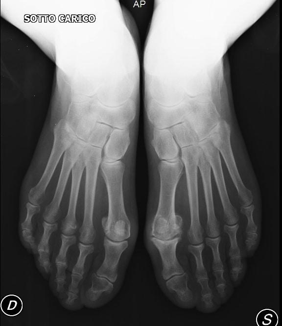 Röntgenaufnahme,Fuß
