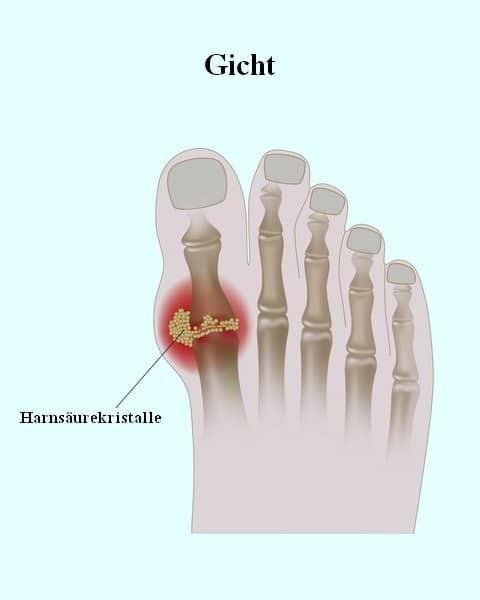 Gicht,Anhäufung,Kristalle,Säure,Harn,Gelenk,Arthritis,Großzehe
