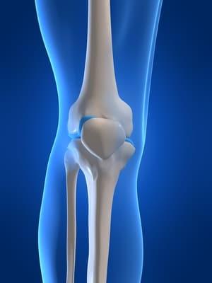 Knie,Gelenk,betroffen,Gicht