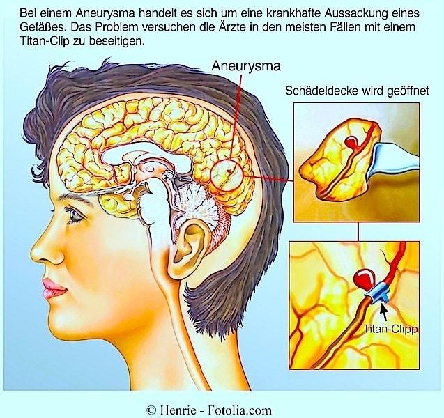 Aneurysma,Hirnblutung