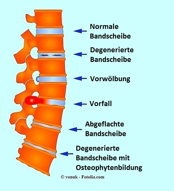 Hernie,Bulging,Arthrose,Osteophyten,Rücken