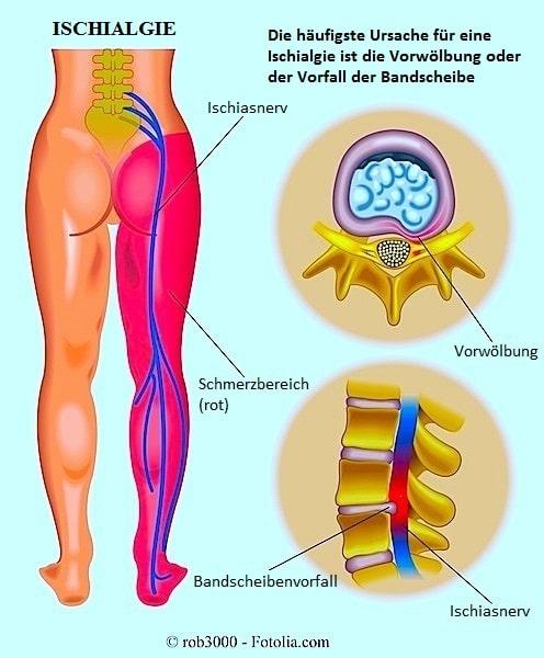 Ischiasnerventzündung