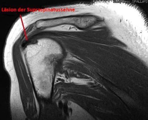 Magnetresonanztomographie,Schulter,Humerus,Läsion,Supraspinatus