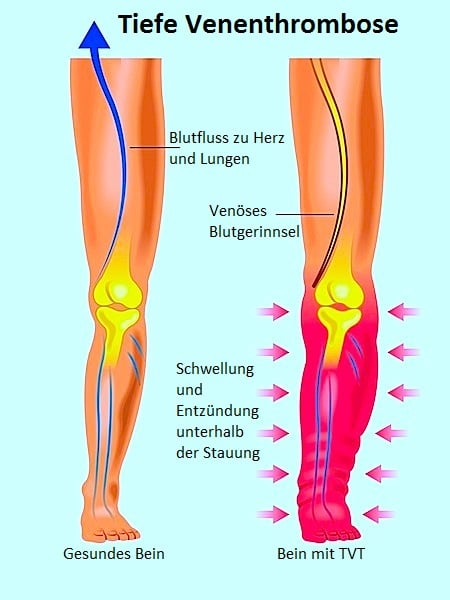 Die Varikose auf den Beinen welche die Salbe