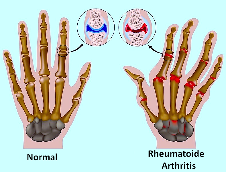 Erosion,Gelenke,Finger,Hand,Deformation,Verstümmelung,rheumatoid
