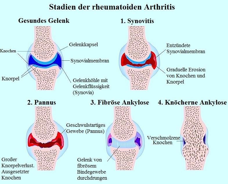 Arthritis,rheumatoid,Synovitis,Gelenk,Entzündung,autoimmun,Arthritis,Knochen,Fusion,Erosion