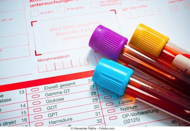 Blutuntersuchung - Bluttest