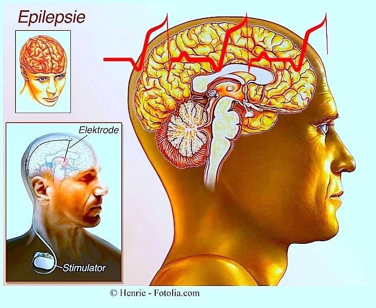 Epilepsie,Gehirn,Stimulator,Vagusnerv