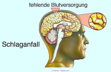 Symptome bei Schlaganfall