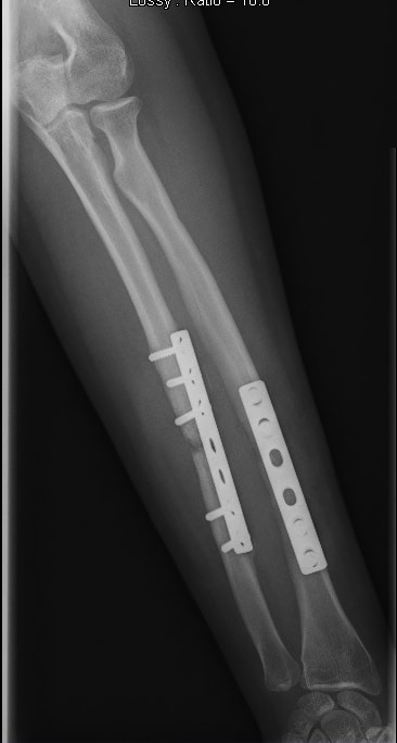 Platte,Schrauben,chirurgischer Eingriff,Fraktur,Elle,Unterarm,Schmerz