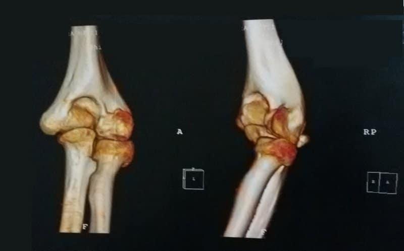 CT,Ellenbogenfraktur,Osteosklerose