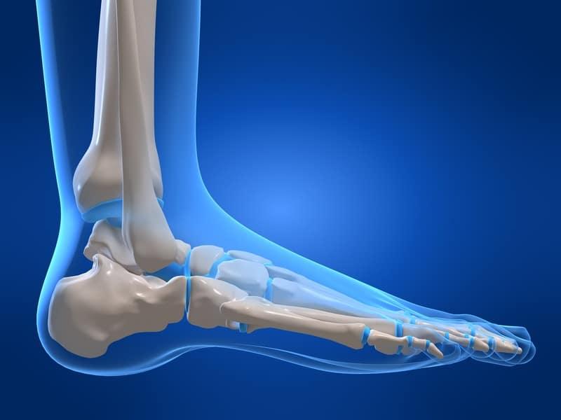 Fraktur des fünften Mittelfußknochens,Anatomie,Fuß,Schmerz,chirurgischer, Eingriff