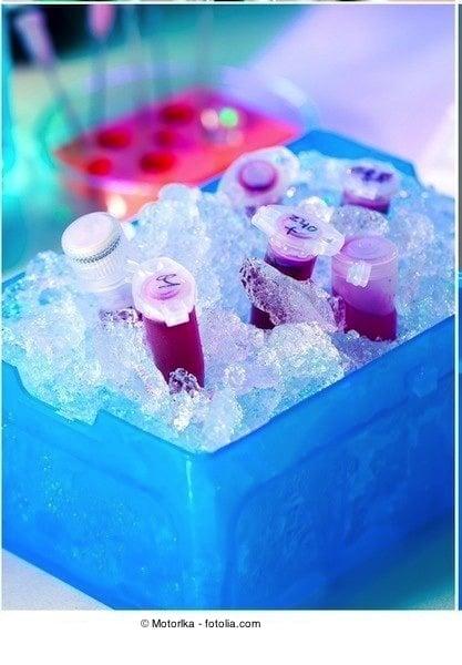 Blutuntersuchung,Analyse,Eis